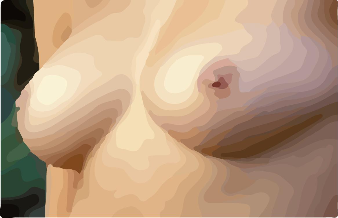 breast--1